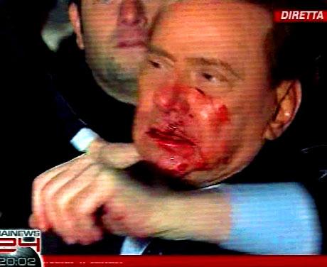 Berlusconi'nin burnunu kırdılar! galerisi resim 10