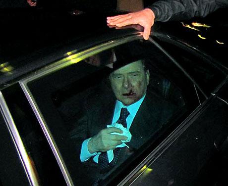 Berlusconi'nin burnunu kırdılar! galerisi resim 11