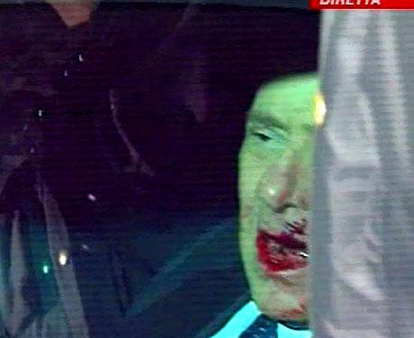 Berlusconi'nin burnunu kırdılar! galerisi resim 14