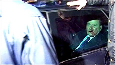 Berlusconi'nin burnunu kırdılar! galerisi resim 15