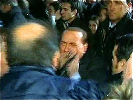 Berlusconi'nin burnunu kırdılar! galerisi resim 17