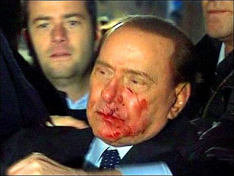 Berlusconi'nin burnunu kırdılar! galerisi resim 18