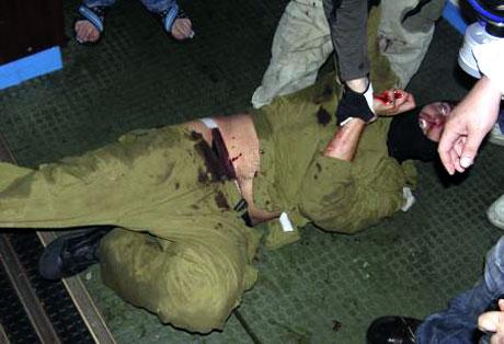 İsrail'in imajı yerlerde: Ağlayan komando! galerisi resim 4