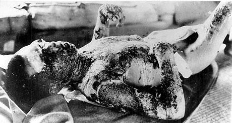 65 yıl önce yaşanan felaket galerisi resim 9