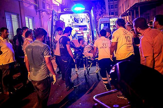 Antep'te bombalı saldırı: En az 50 kişi hayatını kaybetti galerisi resim 18