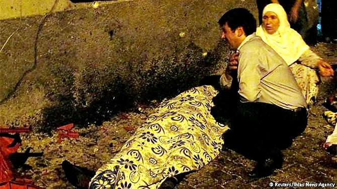 Antep'te bombalı saldırı: En az 50 kişi hayatını kaybetti galerisi resim 3