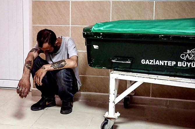 Antep'te bombalı saldırı: En az 50 kişi hayatını kaybetti galerisi resim 46