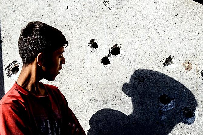 Antep'te bombalı saldırı: En az 50 kişi hayatını kaybetti galerisi resim 79