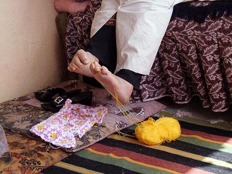 Ayakları ile ördüklerini satıp burs veriyor galerisi resim 1