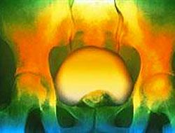 Prostat kanserinde virüs şüphesi