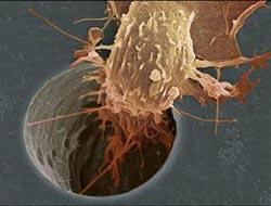 Kanserli hücreler çiple takip edilecek
