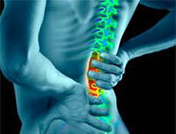 Sırt ağrısı için 10 tavsiye