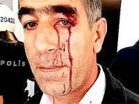 Spor Bakanı: Amedspor'un başına gelenler siyasete çekilmemeli